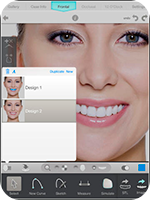 Digital smile design 1