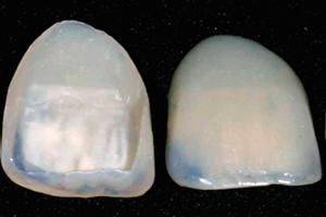 Aesthetic - Ceramic