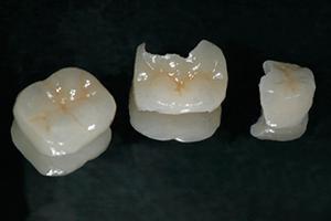 Aesthetic - Ceramic Stopping 2