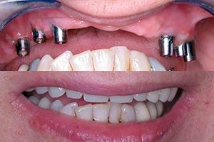 Oral surgery 2