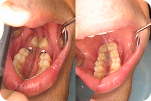 Oral surgery 3