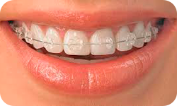 Orthodontics 3