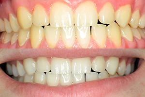 Sanjati beli zubi