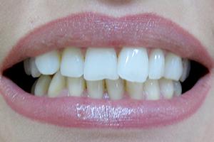 Beljenje zuba 2