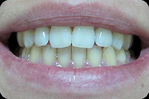 Beljenje zuba 3
