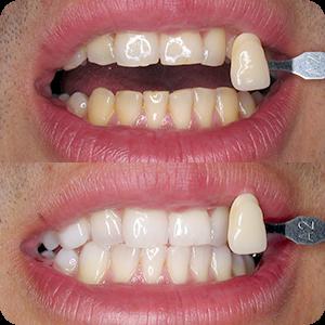 Beljenje zuba - Lasersko Beljenje