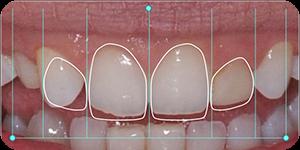Digitalni dizajn osmeha 3