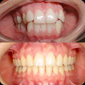 Estetska - Ispravljanje zuba