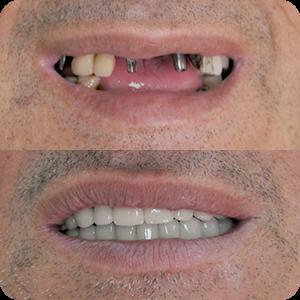 Oralna hirurgija 1