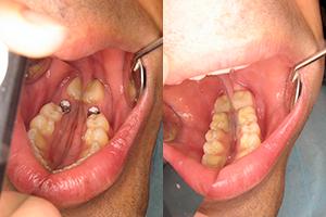 Oralna hirurgija 3