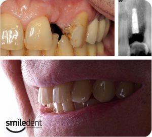 implanti kod estetske stomatologije