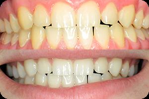 Beljenje zuba 1