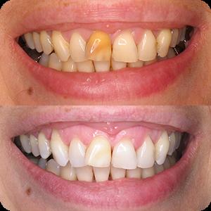 Beljenje zuba - Endodontsko beljenje