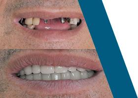 Oralna hirurgija i implantologija